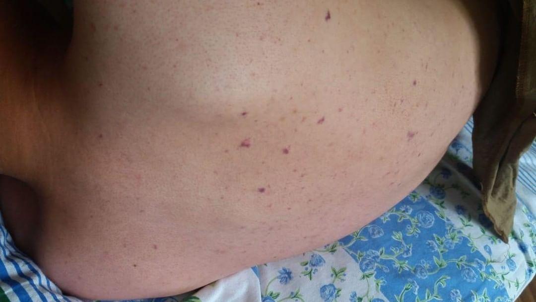 Солдат из Караганды заразился менингитом в войсковой части в ВКО, фото-3